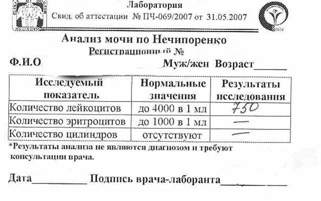 Аналіз сечі по Нечипоренко: як збирати, норма і розшифровка