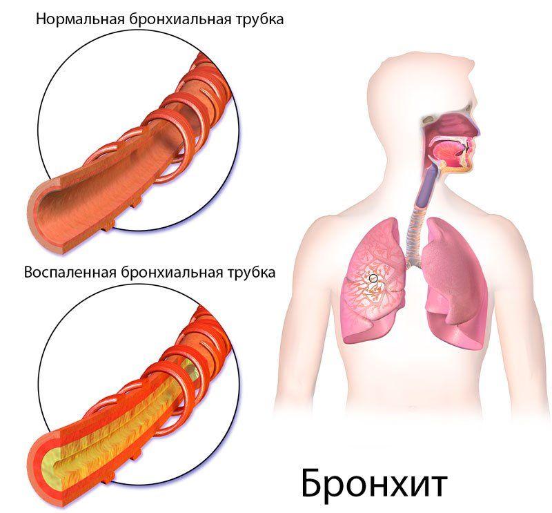 Бронхіт і пневмонія: відмінності, лікування, може бронхіт перейти в запалення легенів