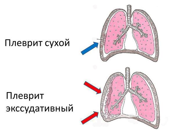 chomu bolyat legen pri kashl 1 - Чому болять легені при кашлі
