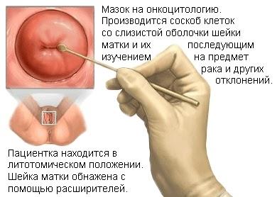 Цитологічне дослідження каналу шийки матки або пап-тест у жінок