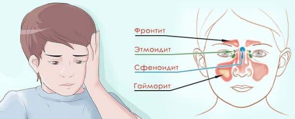 frontit u d tey osnovn simptomi metodi l kuvannya 1 - Фронтит у дітей основні симптоми і методи лікування
