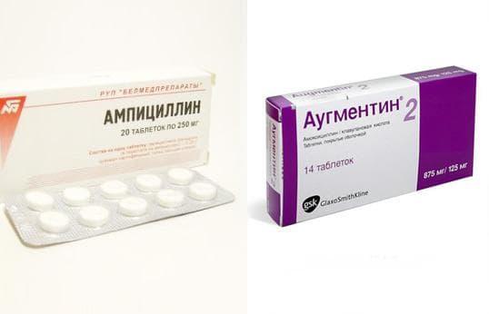 Гайморит симптоми лікування антибіотиками