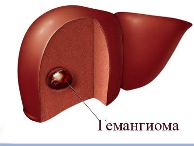 Гемангіома печінки що це таке і лікування народними засобами