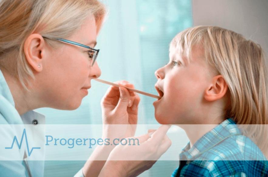 Герпесная ангіна у дітей методи лікування