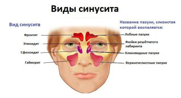 Хронічний пансинусит його види симптоматика та лікування
