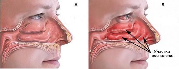 Хронічний риніт форми причини і симптоми захворювання