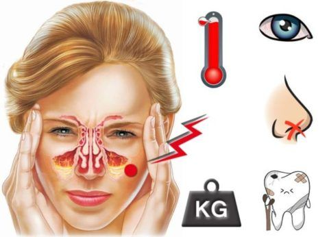 k sta l vo verhn oschelepno pazuhi prichini l kuvannya 1 - Кіста лівої верхньощелепної пазухи: причини і лікування