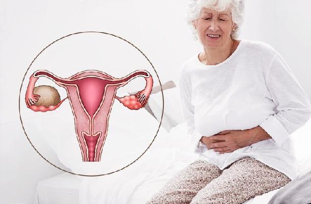 k sta ya chnika v per od menopauzi potr bno vidalyati 1 - Кіста яєчника в період менопаузи потрібно видаляти