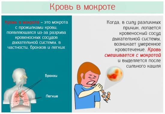 Кашель з кров'ю: причини і лікування
