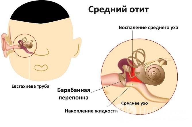 Катаральний отит лікування та можливі ускладнення