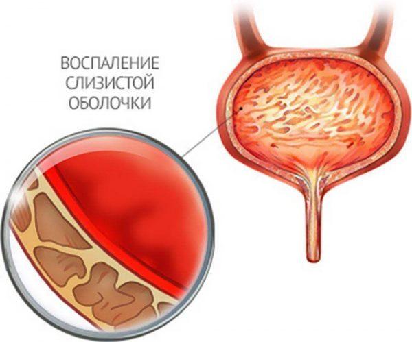 Катетеризація сечового міхура у чоловіків та жінок