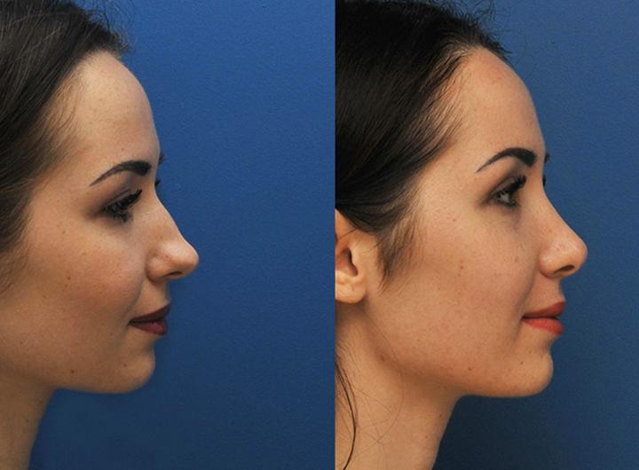 Корекція форми носа з допомогою лангетки масажу та іншими методами