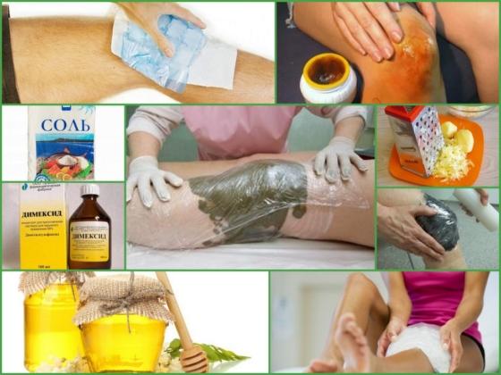 Лікування бурситу колінного суглоба народними засобами Суглоби