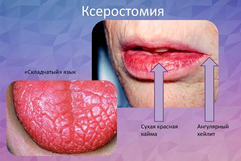 ЛІКУВАННЯ КСЕРОСТОМІЇ – Ксеростомія як симптом при патології органів і систем