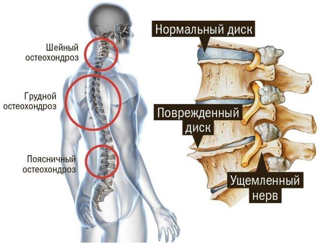 Лікування шийного остеохондрозу народними засобами небезпечно