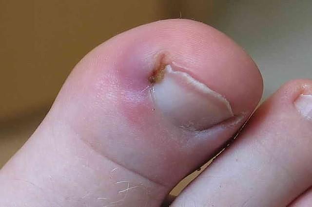 Лікування врослого нігтя народними засобами