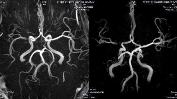 МРТ судин головного мозку в Москві: ціни, зробити томографію судин головного мозку та шиї недорого