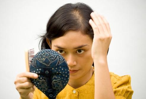 narodn zasobi v d vipad nnya volossya u zh nok v domashn h umovah 1 - Народні засоби від випадіння волосся у жінок в домашніх умовах