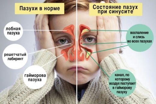 Не просто нежить: верхньощелепної синусит