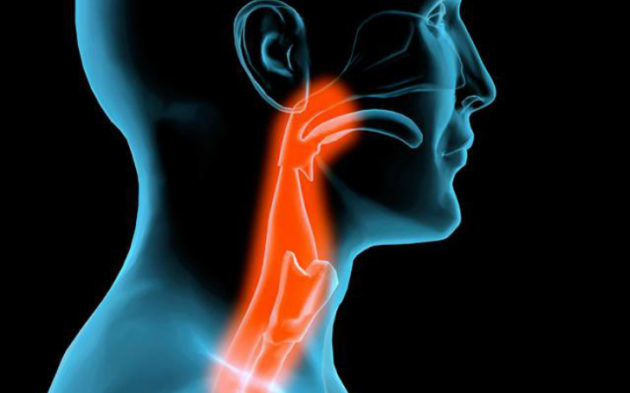 nevroz glotki simptomi l kuvannya 2019 1 - Невроз глотки – симптоми і лікування 2019