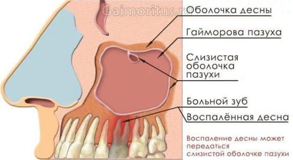 Одонтогенний синусит верхньощелепної пазухи