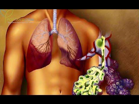 Ознаки пневмонії у дорослого з температурою – симптоми запалення легенів