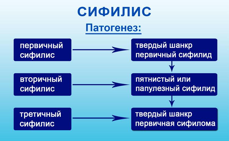 Ознаки сифілісу глотки форми і методика лікування