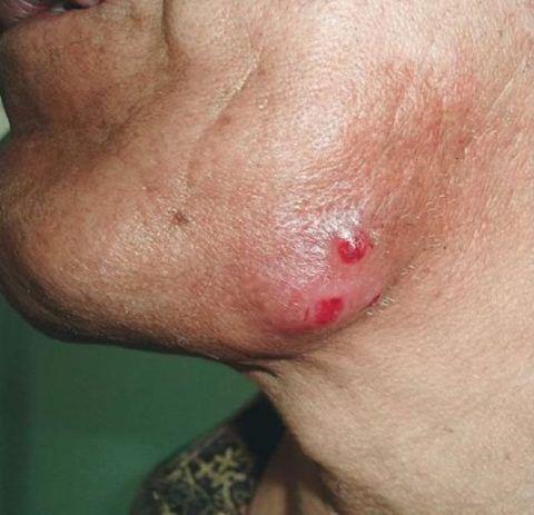 Ознаки симптоми і лікування актиномікозу щелепно-лицьової області
