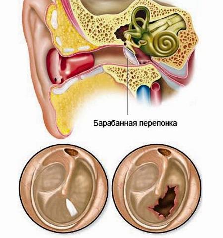 Ознаки і симптоми ушкодження барабанної перетинки