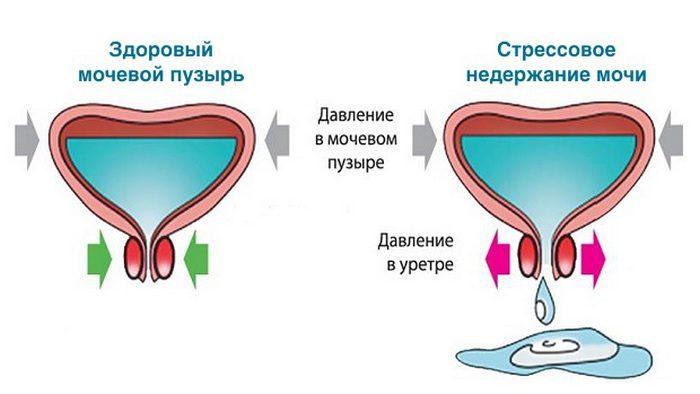 p dt kannya sech u zh nok simptomi prichini y l kuvannya 1 - Підтікання сечі у жінок: симптоми, причини й лікування