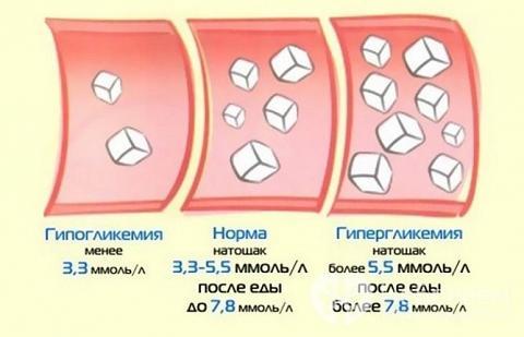 Підвищений цукор у крові: симптоми у жінок і причини відхилень від норми