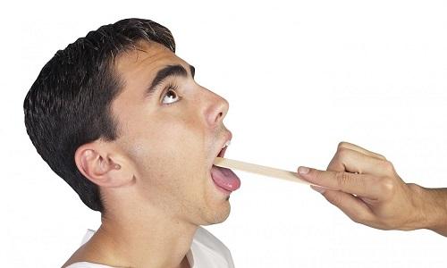 Папіломи в горлі симптоми та причини виникнення