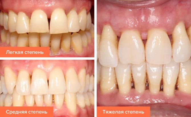Парадонтоз врятувати зуби ліки допомагають народні засоби
