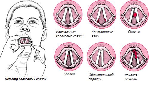 Параліч голосових зв'язок та гортані. Поліпи і вузлики на голосових зв'язках і гортані