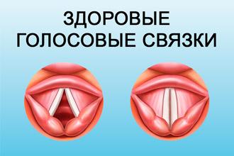 Параліч гортані – Хвороби оториноларингології