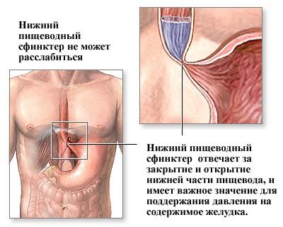 Печія в горлі – причини і лікування