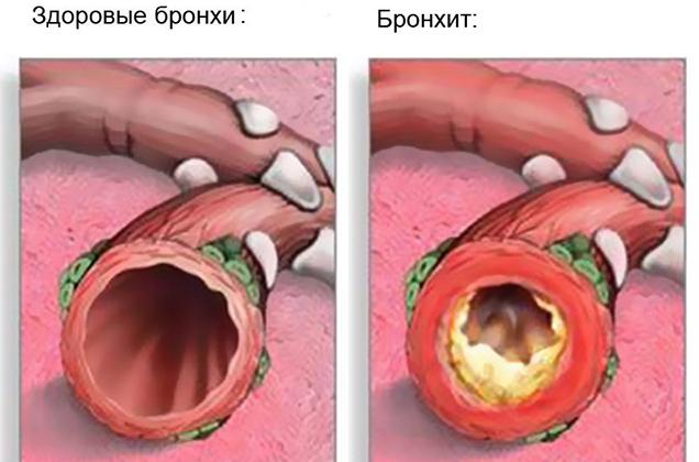 Передається бронхіт від хворої людини здоровій і в яких випадках він є заразним