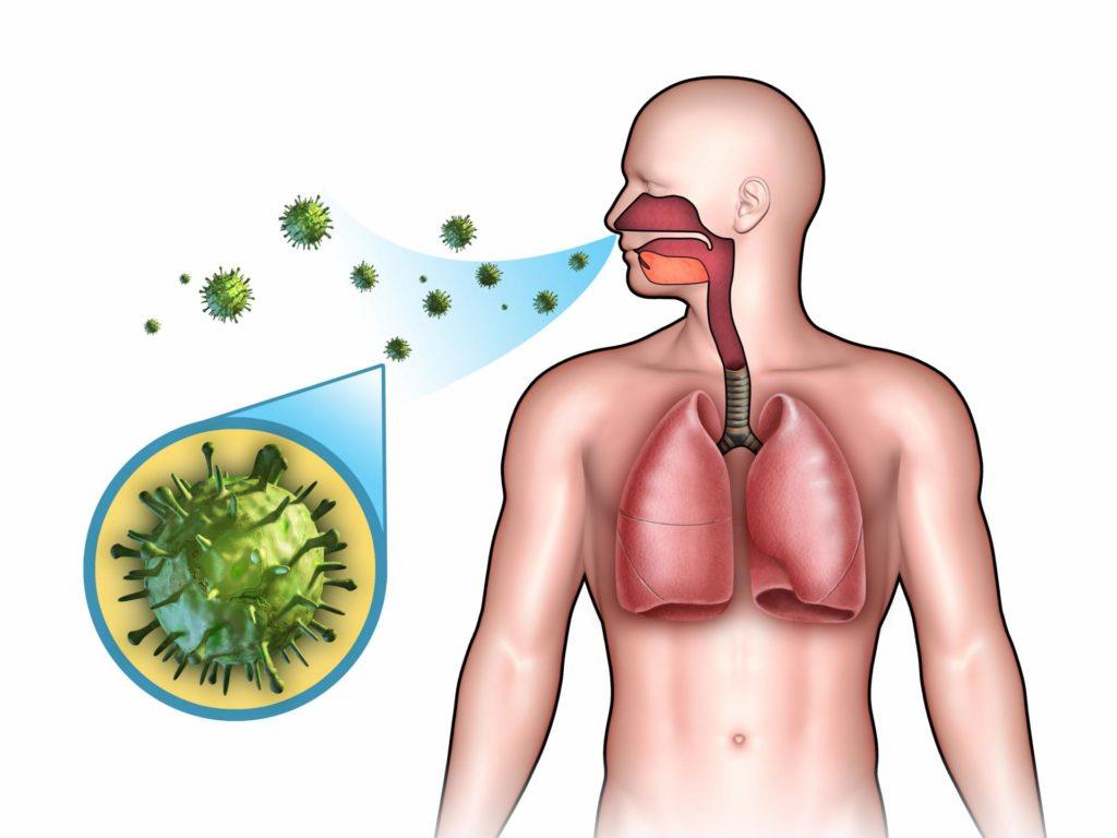 Пневмонія основи успішного лікування у дорослих