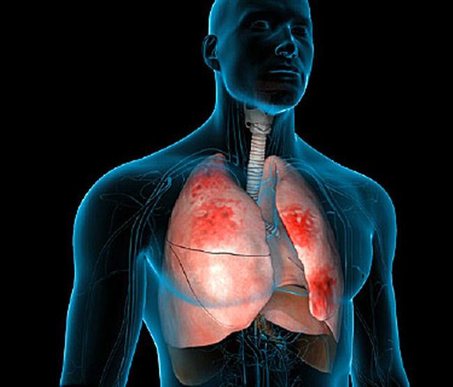 Пневмонія симптоми у дорослих з температурою наслідки