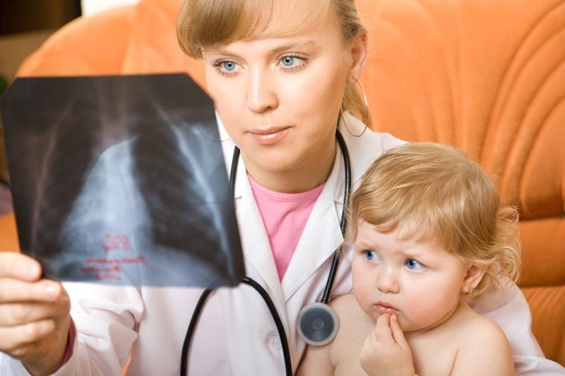 pnevmon ya u ditini simptomi oznaki l kuvannya 1 - Пневмонія у дитини – симптоми, ознаки, лікування