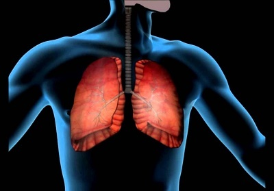 Пневмонія у дорослих як уникнути ускладнень
