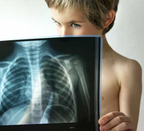 Пневмонія з температурою у дітей
