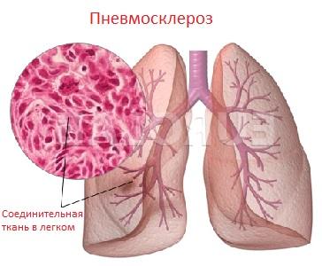 Пневмосклероз легень – що це таке: лікування і симптоми