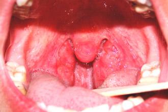 post yno zb l shen migdalini glandi u d tey 1 - Постійно збільшені мигдалини (гланди) у дітей