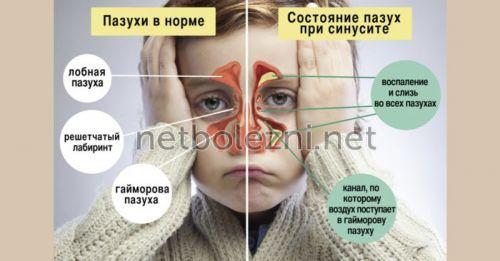Препарати з антибіотиком та інші краплі в ніс при гаймориті