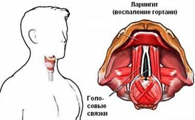 При кашлю у дітей препарати