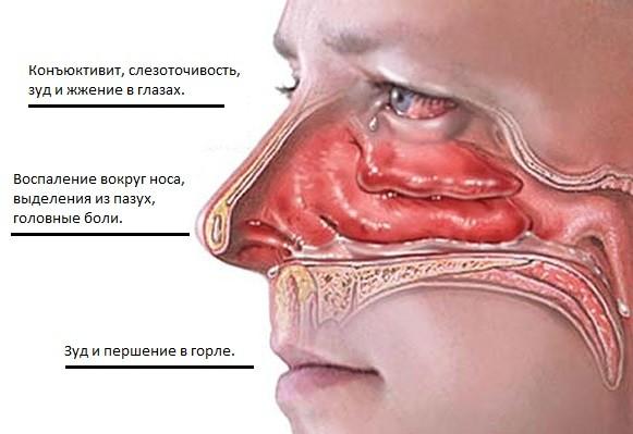 Причини хронічного нежитю і лікування хронічного риніту