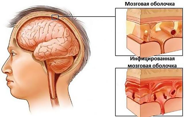 prichini simptomi l kuvannya ochnogo bolyu pri gaymorit 1 - Причини симптоми і лікування очного болю при гаймориті