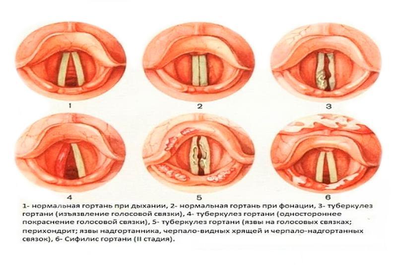 prichini simptomi l kuvannya tuberkul ozu gortan 1 - Причини симптоми і лікування туберкульозу гортані