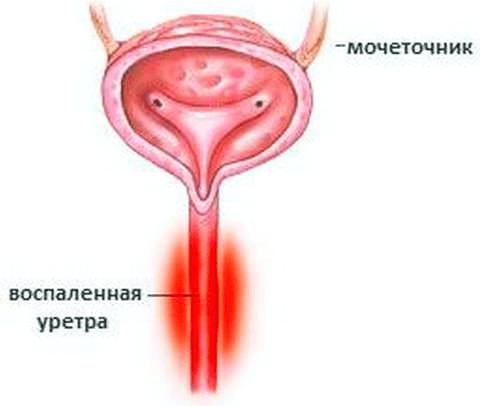 Причини і симптоми уретриту у жінок. Як лікувати уретрит у жінок — препарати, свічки, антибіотики. Народне лікування уретриту у жінок в домашніх умовах. Симптоми і лікування уретриту у жінок